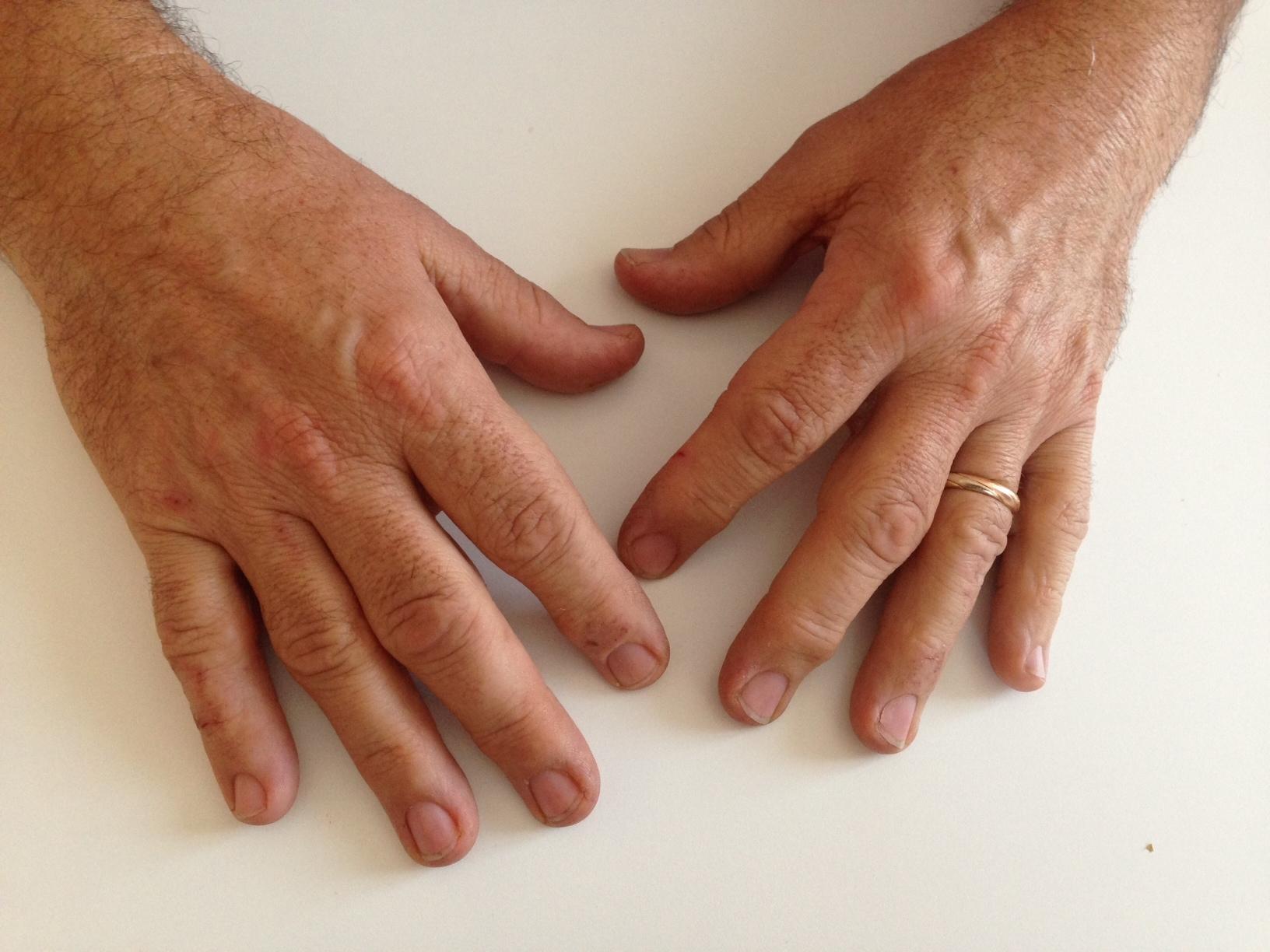 Che si artrosi alle mani automatic software - Bagni di paraffina alle mani ...